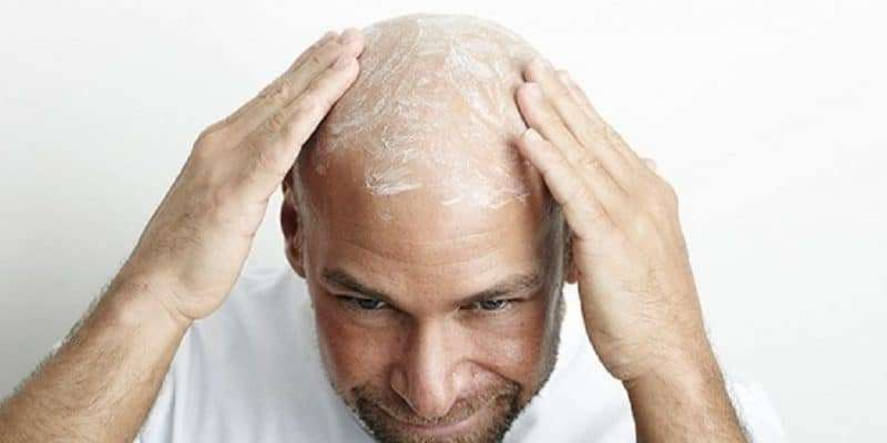 Best Bald Head Lotions
